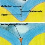 Fissurenversiegelung Zahnarzt Stuttgart Strohkendl