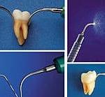 Ultraschall Zahnarzt Stuttgart Vaihingen Möhringen Strohkendl